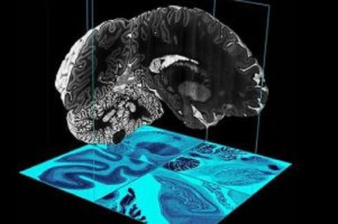 Ὡραῖα, τὸ μελετήσαμε τὸν ἐγκέφαλο. Ὥρα νὰ τὸν ἀναπαράξουμε!